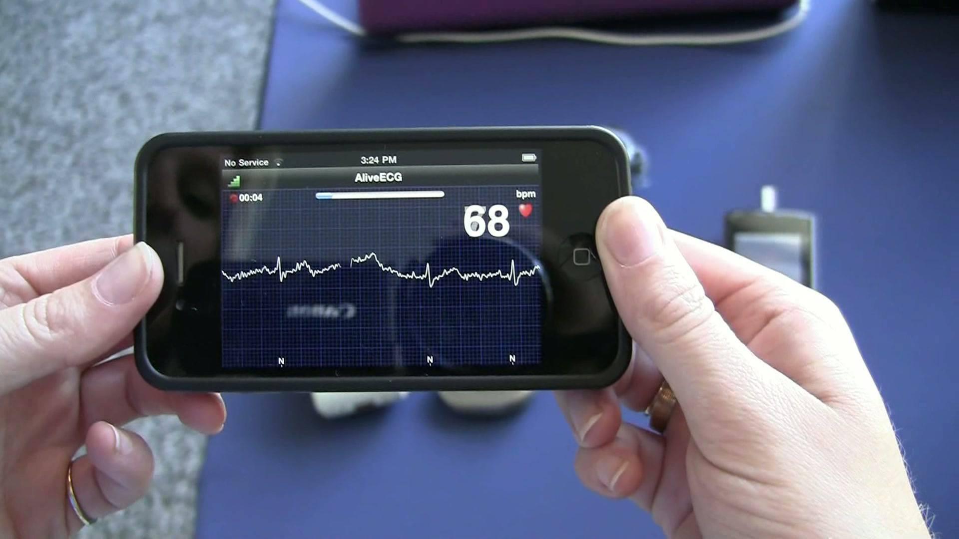 Hoe betrouwbaar is een ECG-apparaat uit de Apple Store ...