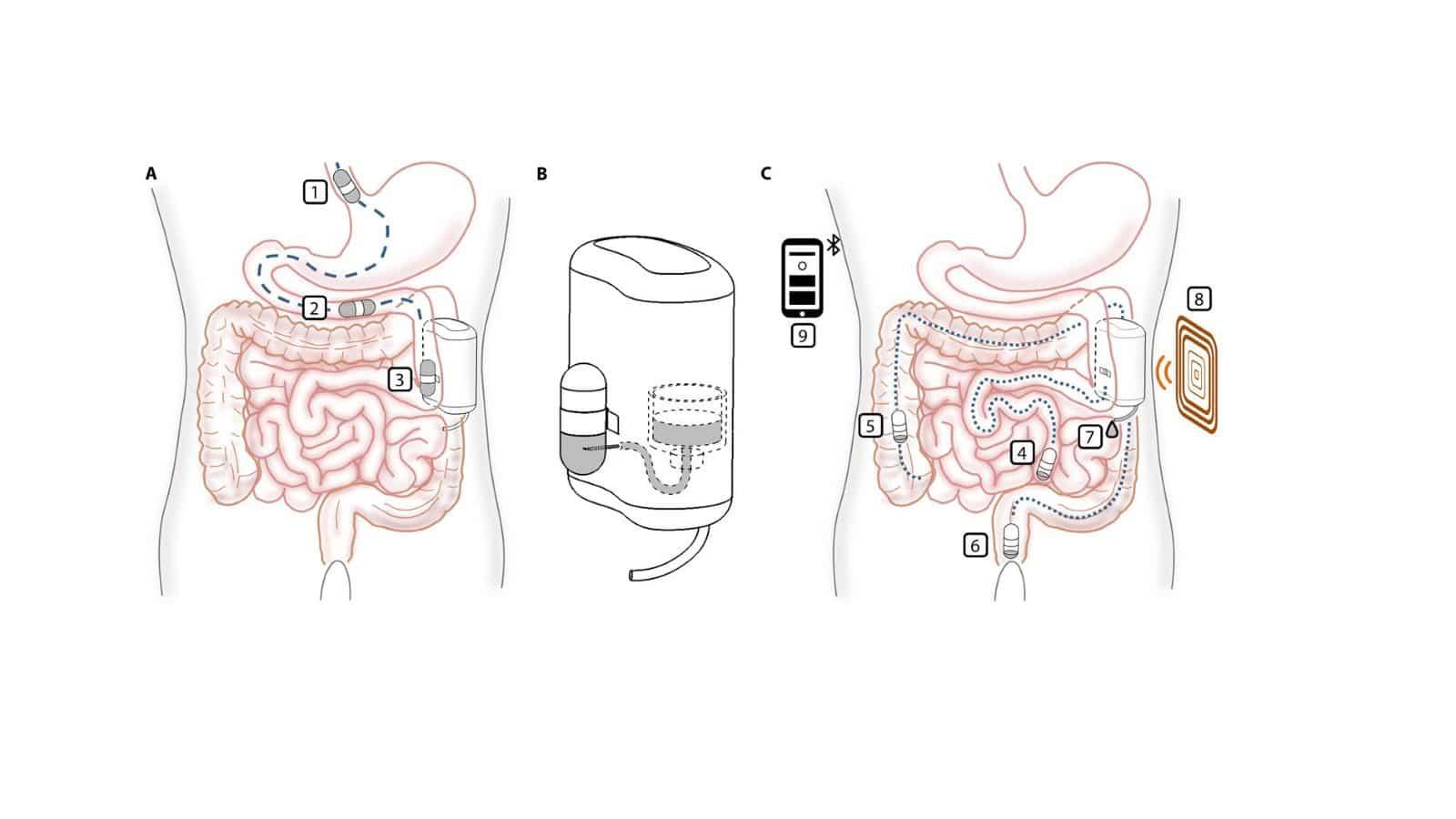 Insulinepompje met capsule