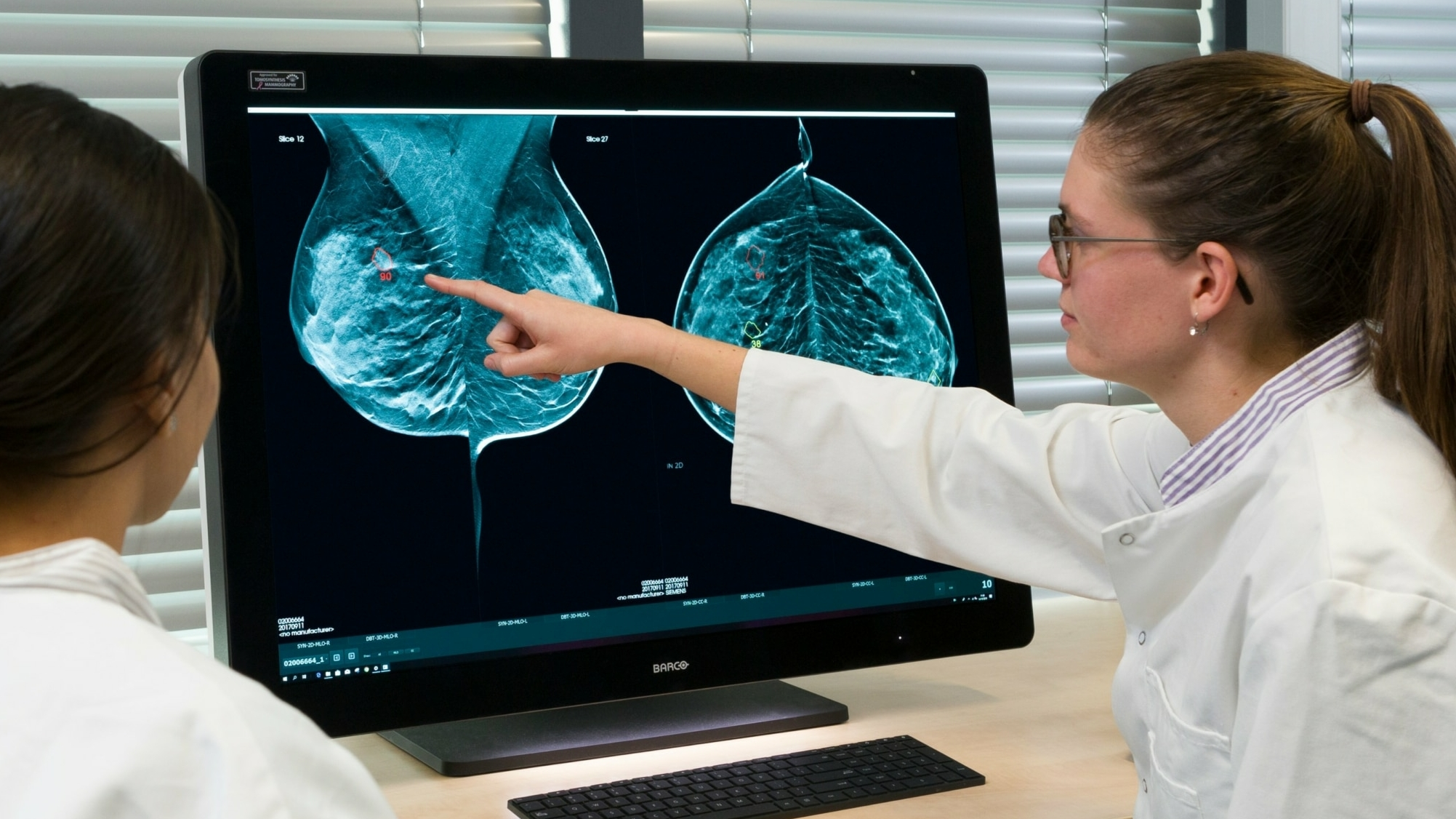 Screenpoint medical software AI